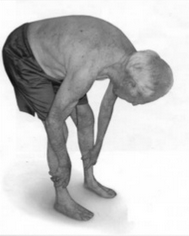 Photo of older man bending over.
